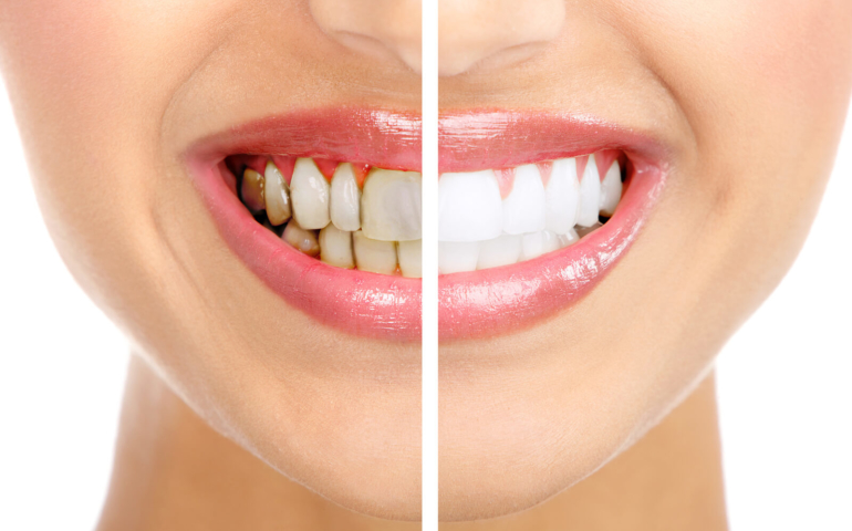 How to Prevent Red Wines Teeth Stains