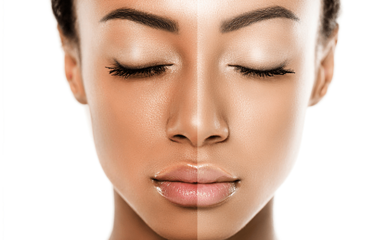 9 Harmful Effects Of Skin Bleaching Creams To Your Health
